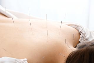 鍼灸施術で自然治癒力を高める